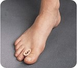 TOE SPREADER 12/PK